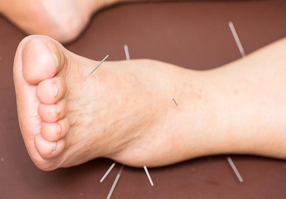 Akupunktur-Fiyatlari